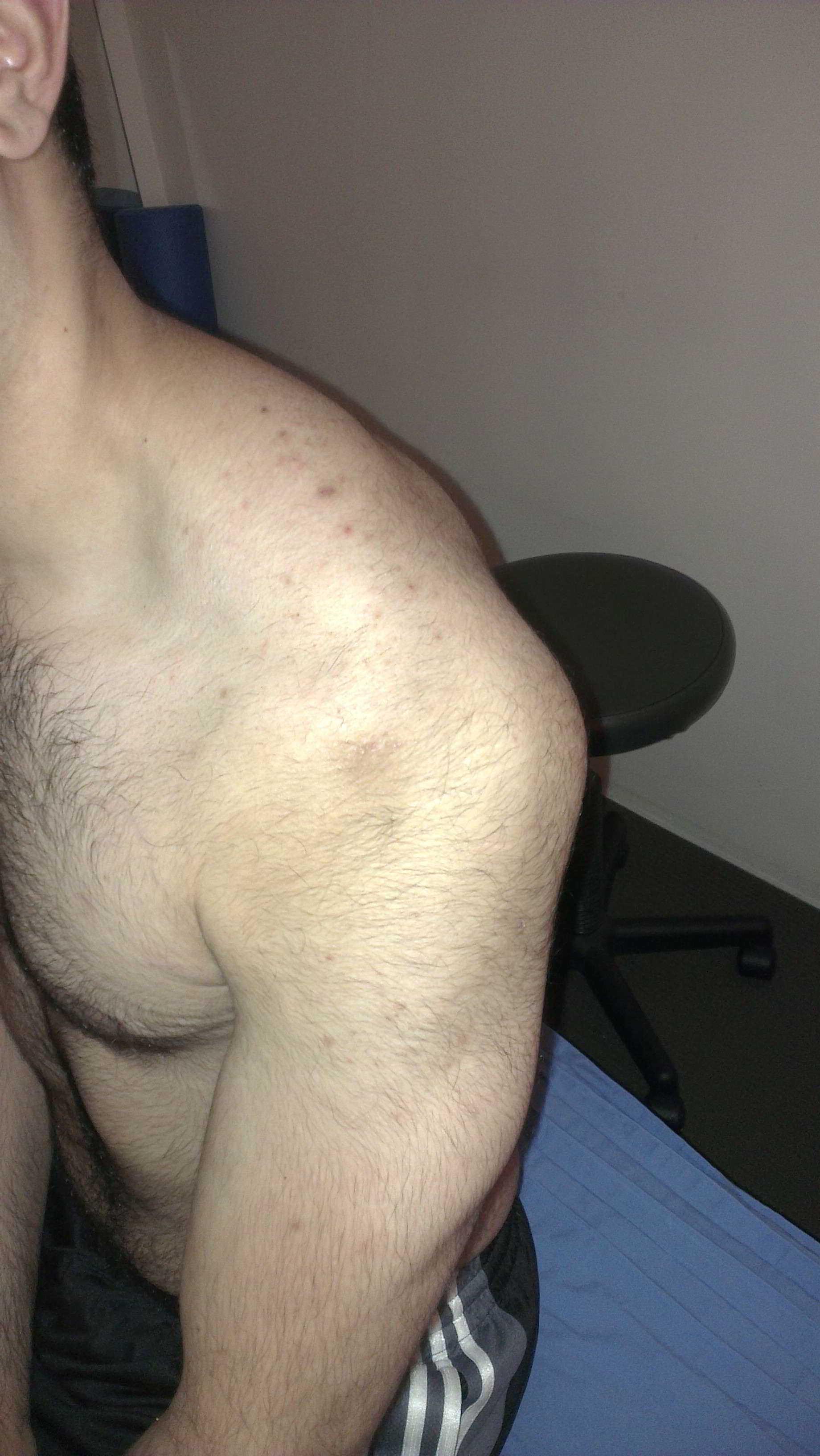 Set Shoulder Dislocation Posterior Shoulder Dislocation
