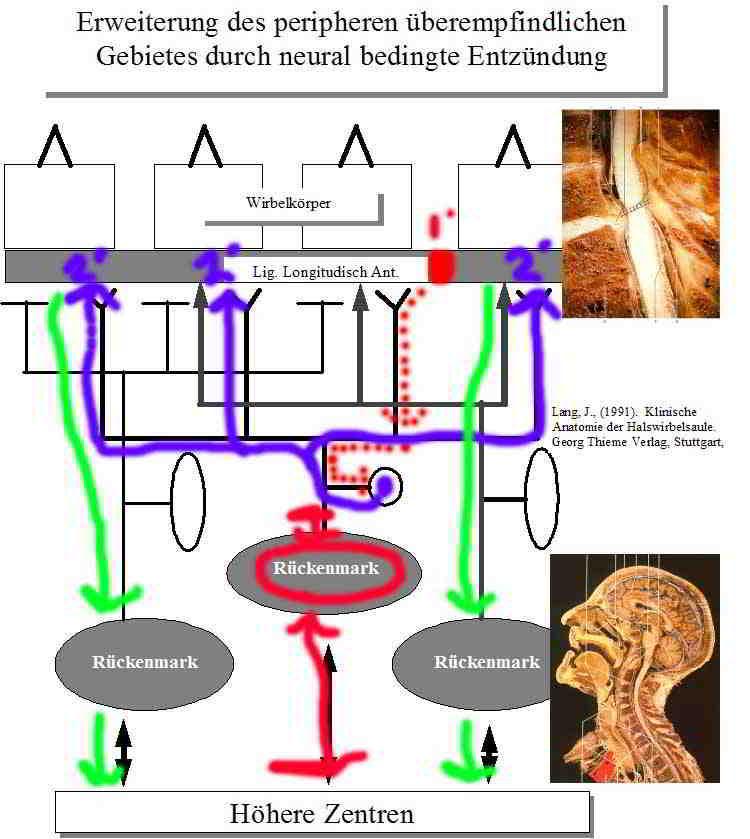 Lendenwirbel Dysfunktion und Klinisches Denken